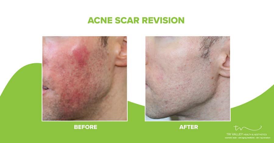 patient testimonial acne scar revision plan 5fce7e36675cd