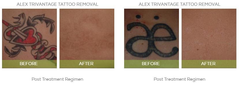tatto removal2