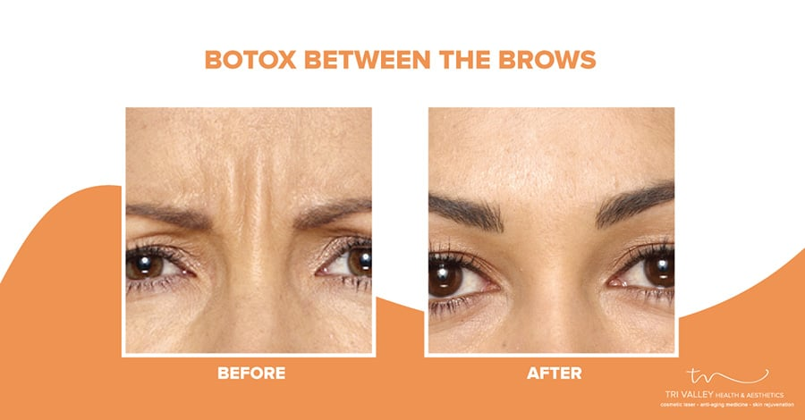 using botox for wrinkles between eyebrows 5fce7e2849e15